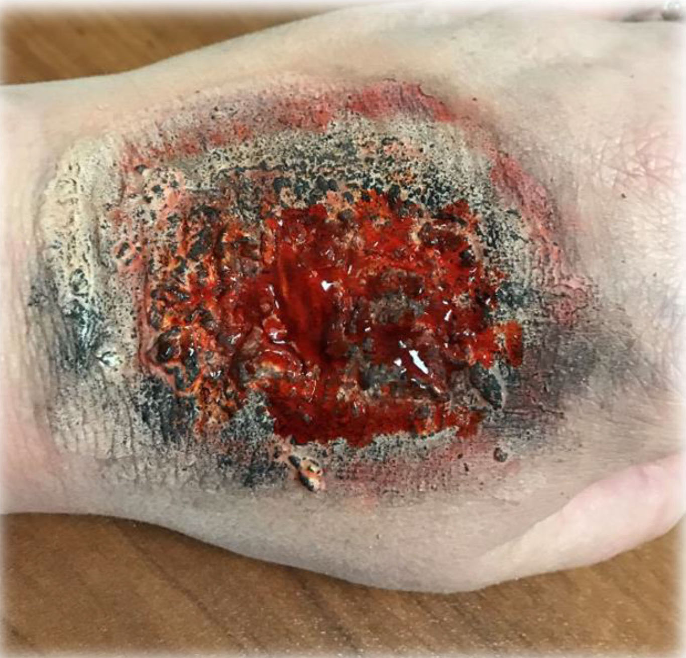Moulage on hand