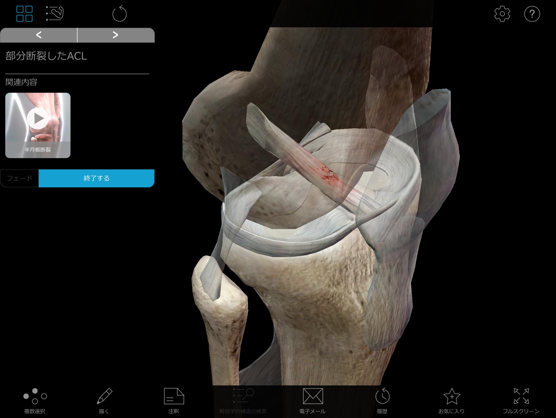 Thumbnail of Visible Body Muscle Premium 3D model pathology