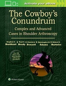 The Cowboy's Conundrum: Complex and Advanced Cases in Shoulder Arthroscopy book cover