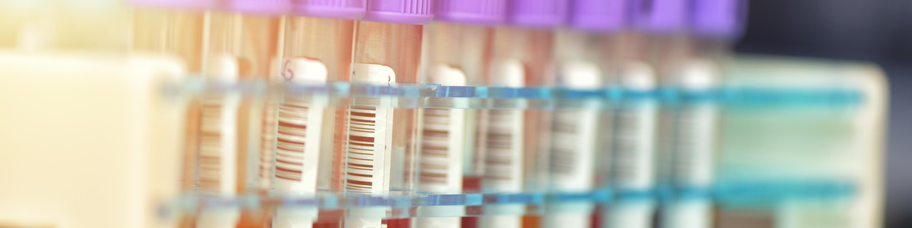 Tubes of blood samples for testing, medical equipment