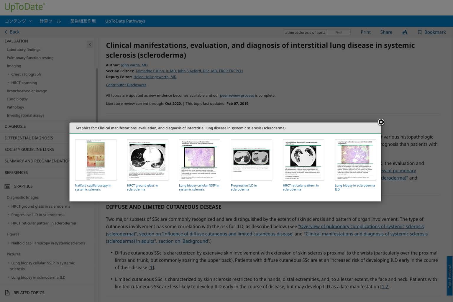 UpToDate graphics video screenshot